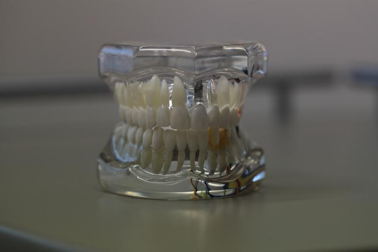vzorek zubního chrupu